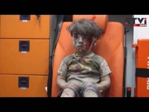 Выживший в бомбежке мальчик стал символом сирийской войны